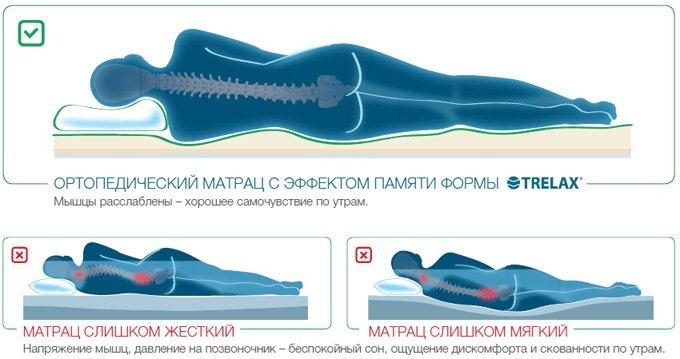 Матрас ортопедический TRELAX DREAM